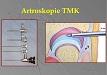 Artroskopie temporomandibulárního kloubu