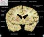 Atlas řezů mozkem