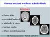 Komoce mozková vordinaci zubního lékaře