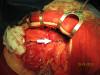 Operace jater, žlučových cest a žlučníku