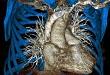 Srdce a cévy hrudníku