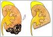 Urologie pro studenty všeobecného lékařství - Obecná urologie, vrozené vady, infekce