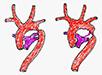 Vývojové vady, malformace a syndromy v embryologii